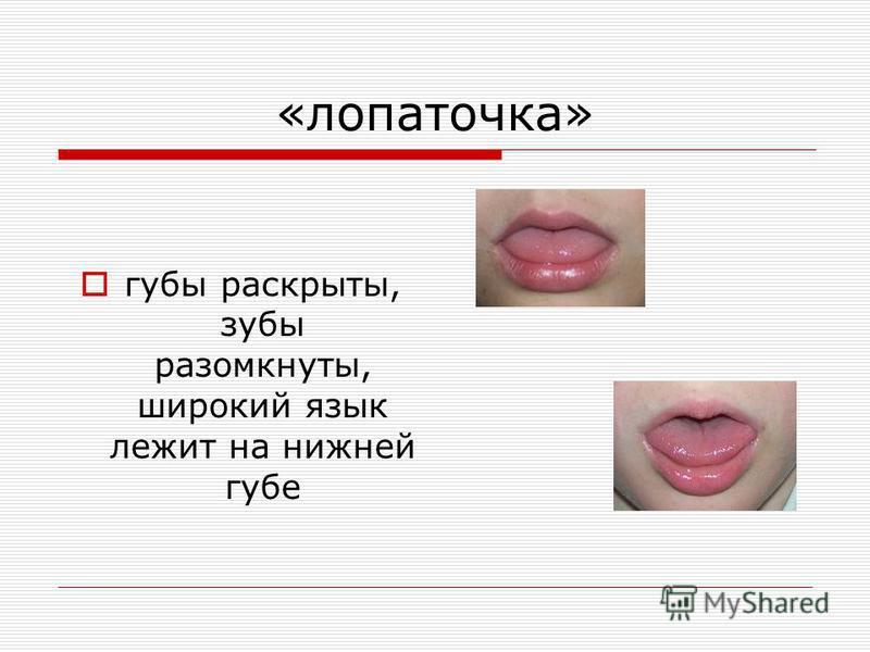 «лопаточка» губы раскрыты, зубы разомкнуты, широкий язык лежит на нижней губе