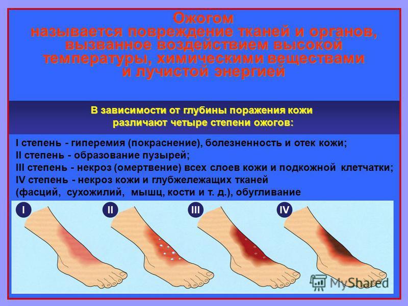 Ожогом называется повреждение тканей и органов, вызванное воздействием высокой температуры, химическими веществами и лучистой энергией I степень - гиперемия (покраснение), болезненность и отек кожи; II степень - образование пузырей; III степень - нек