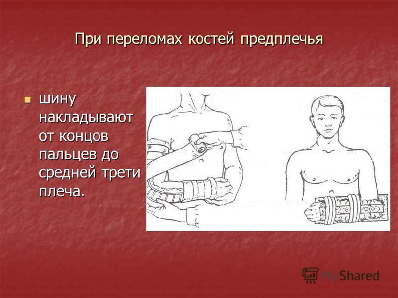 При переломах костей предплечья шину накладывают от концов пальцев до средней трети плеча. шину накладывают от концов пальцев до средней трети плеча.