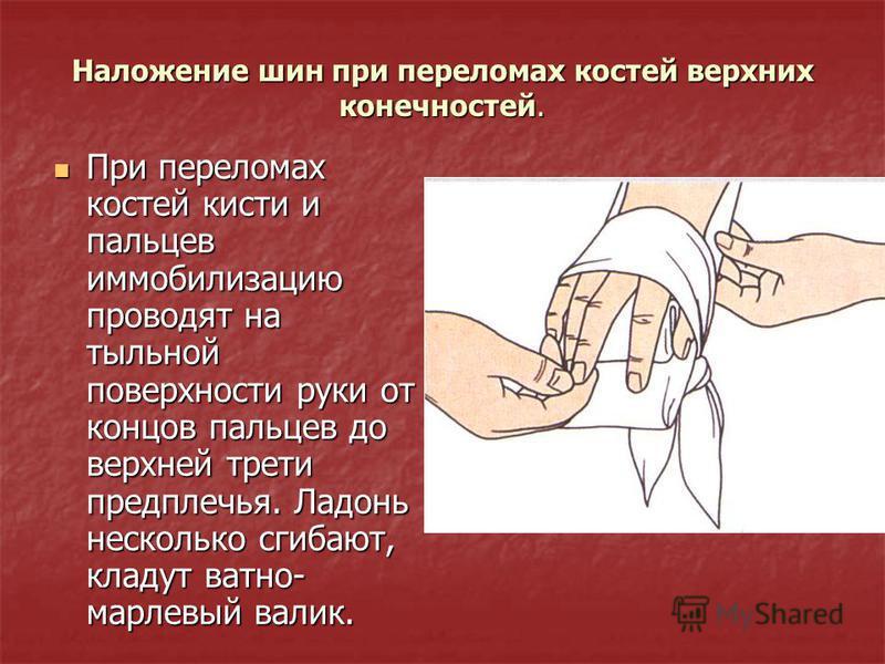 Наложение шин при переломах костей верхних конечностей. При переломах костей кисти и пальцев иммобилизацию проводят на тыльной поверхности руки от концов пальцев до верхней трети предплечья. Ладонь несколько сгибают, кладут ватно- марлевый валик. При
