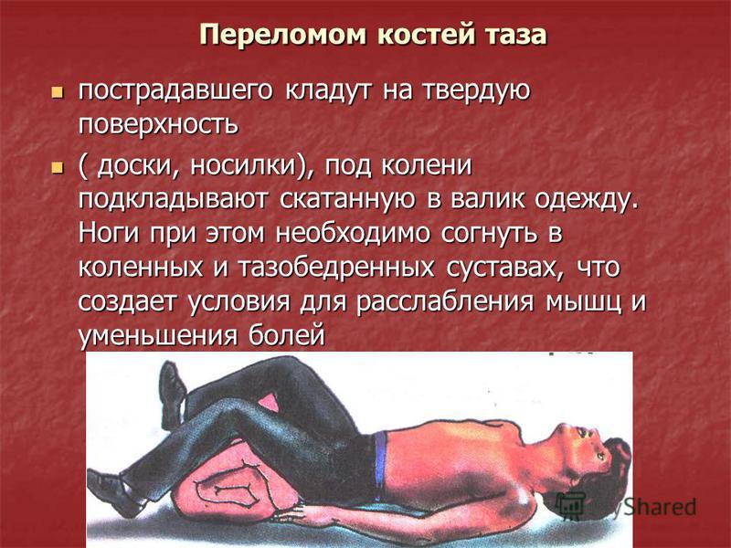 Переломом костей таза Переломом костей таза пострадавшего кладут на твердую поверхность пострадавшего кладут на твердую поверхность ( доски, носилки), под колени подкладывают скатанную в валик одежду. Ноги при этом необходимо согнуть в коленных и таз