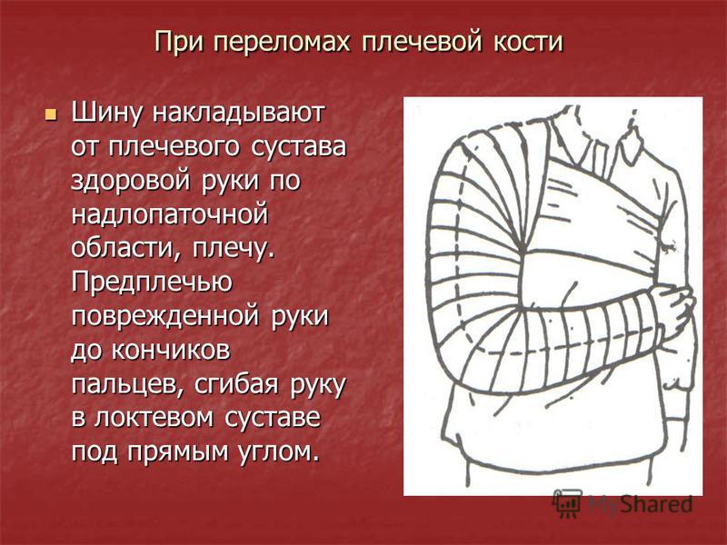 При переломах плечевой кости Шину накладывают от плечевого сустава здоровой руки по надлопаточной области, плечу. Предплечью поврежденной руки до кончиков пальцев, сгибая руку в локтевом суставе под прямым углом. Шину накладывают от плечевого сустава