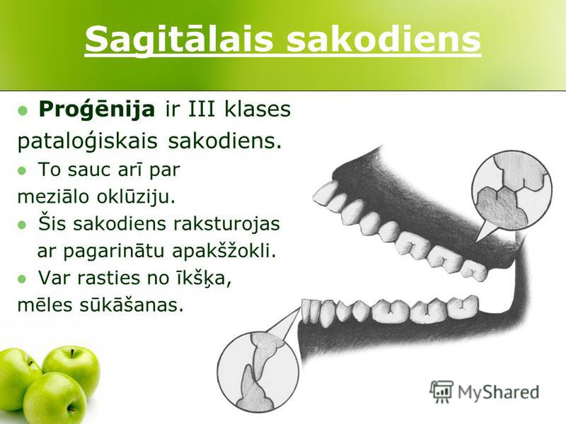 Sagitālais sakodiens Proģēnija ir III klases pataloģiskais sakodiens. To sauc arī par meziālo oklūziju. Šis sakodiens raksturojas ar pagarinātu apakšžokli. Var rasties no īkšķa, mēles sūkāšanas.