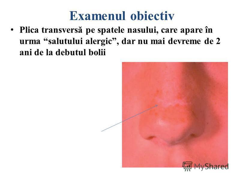 Examenul obiectiv Salutul alergic – gestul specific copiilor cu RA (pentru a ameliora pruritul nazal şi a uşura respiraţia nazală pacientul î-şi freacă cu palma vârful nasul de jos în sus)