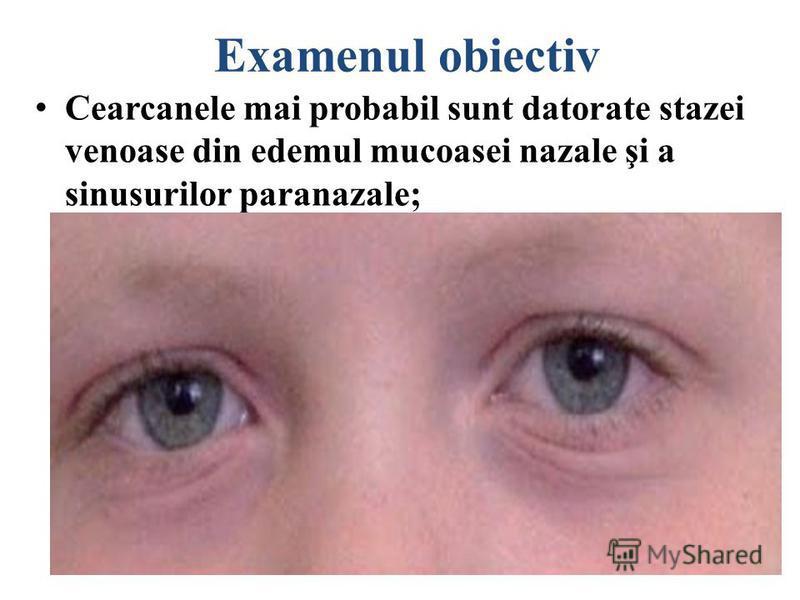 Examenul obiectiv Conjunctivita; Lacrimaţia ochilor; Liniile Dennie – plicile sub palpebrele inferioare, care apar în copilăria fragedă.