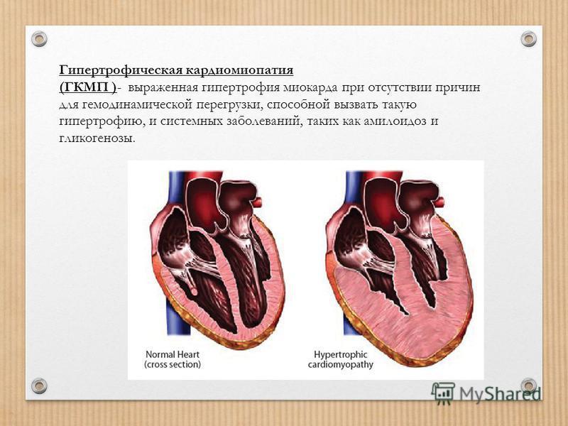 Гипертрофическая кардиомиопатия (ГКМП )- выраженная гипертрофия миокарда при отсутствии причин для гемодинамической перегрузки, способной вызвать такую гипертрофию, и системных заболеваний, таких как амилоидоз и гликогенозы.