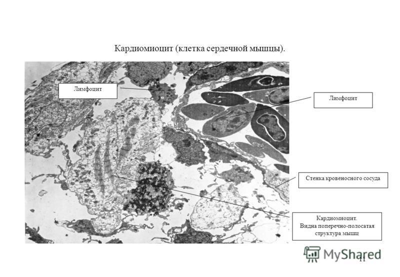 11 Кардиомиоцит (клетка сердечной мышцы). Кардиомиоцит. Видна поперечно-полосатая структура мышц Стенка кровеносного сосуда Лимфоцит