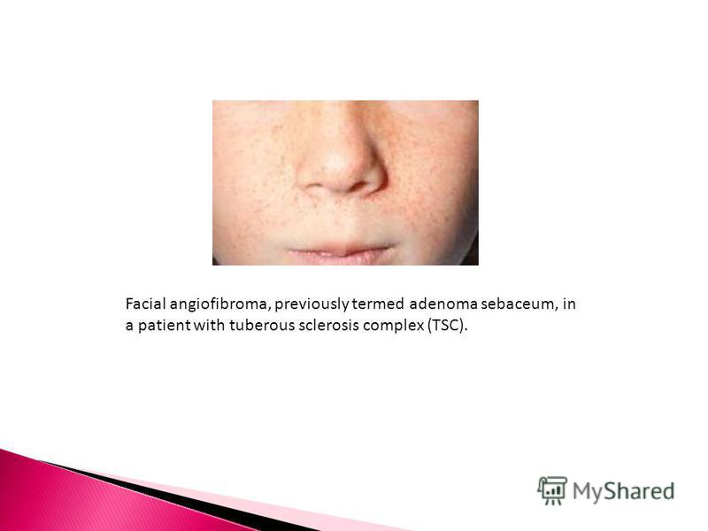 Facial angiofibroma, previously termed adenoma sebaceum, in a patient with tuberous sclerosis complex (TSC).