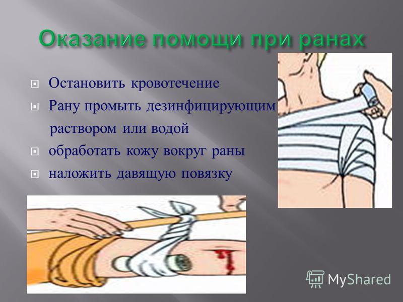 Остановить кровотечение Рану промыть дезинфицирующим раствором или водой обработать кожу вокруг раны наложить давящую повязку
