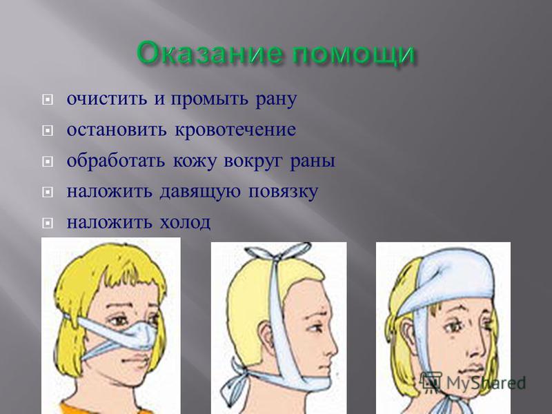 очистить и промыть рану остановить кровотечение обработать кожу вокруг раны наложить давящую повязку наложить холод
