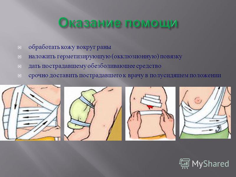 обработать кожу вокруг раны наложить герметизирующую ( окклюзионную ) повязку дать пострадавшему обезболивающее средство срочно доставить пострадавшего к врачу в полусидящем положении