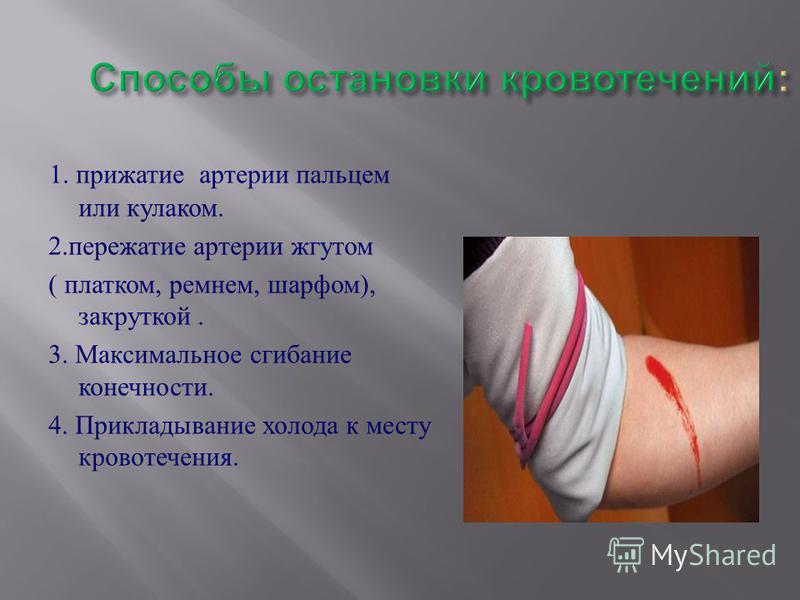1. прижатие артерии пальцем или кулаком. 2. пережатие артерии жгутом ( платком, ремнем, шарфом ), закруткой. 3. Максимальное сгибание конечности. 4. Прикладывание холода к месту кровотечения.