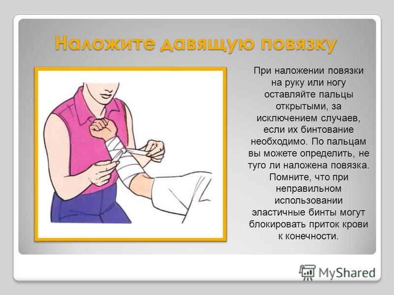 Наложите давящую повязку При наложении повязки на руку или ногу оставляйте пальцы открытыми, за исключением случаев, если их бинтование необходимо. По пальцам вы можете определить, не туго ли наложена повязка. Помните, что при неправильном использова