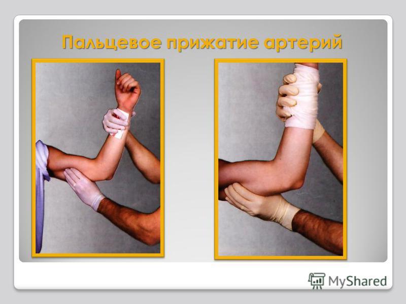 Пальцевое прижатие артерий