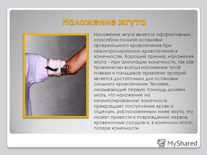 Наложение жгута Наложение жгута является эффективным способом полной остановки артериального кровотечения при неконтролируемом кровотечении в конечностях. Хороший пример наложения жгута – при ампутации конечности, так как практически всегда наложение