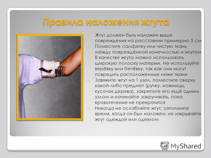 Правила наложения жгута 1. Жгут должен быть наложен выше повреждения на расстоянии примерно 5 см 2. Поместите салфетку или чистую ткань между повреждённой конечностью и жгутом 3. В качестве жгута можно использовать широкую полоску материи. Не использ
