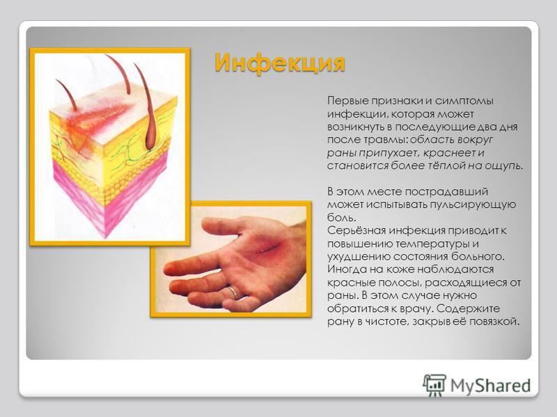 Инфекция Первые признаки и симптомы инфекции, которая может возникнуть в последующие два дня после травмы: область вокруг раны припухает, краснеет и становится более тёплой на ощупь. В этом месте пострадавший может испытывать пульсирующую боль. Серьё