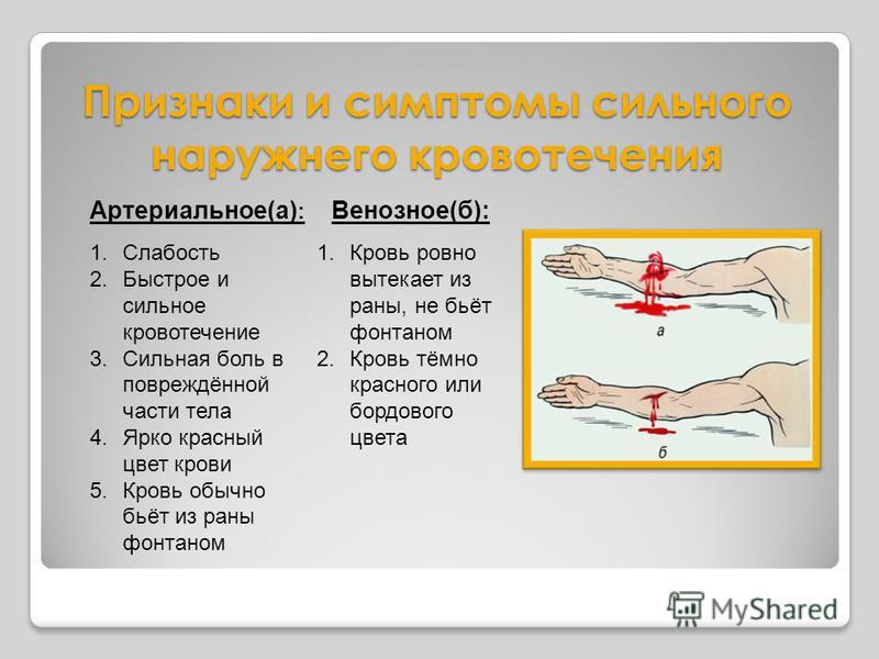 Признаки и симптомы сильного наружного кровотечения Артериальное(а) : 1. Слабость 2. Быстрое и сильное кровотечение 3. Сильная боль в повреждённой части тела 4. Ярко красный цвет крови 5. Кровь обычно бьёт из раны фонтаном Венозное(б): 1. Кровь ровно