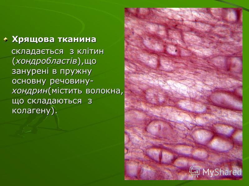 Хрящова тканина складається з клітин (хондробластів),що занурені в пружну основну речовину- хондрин(містить волокна, що складаються з колагену). складається з клітин (хондробластів),що занурені в пружну основну речовину- хондрин(містить волокна, що с