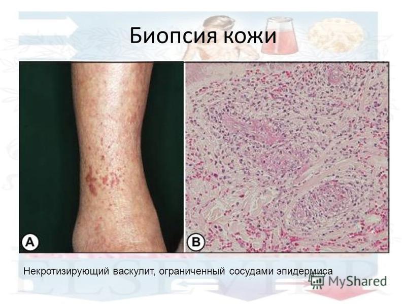 Биопсия кожи Некротизирующий васкулит, ограниченный сосудами эпидермиса