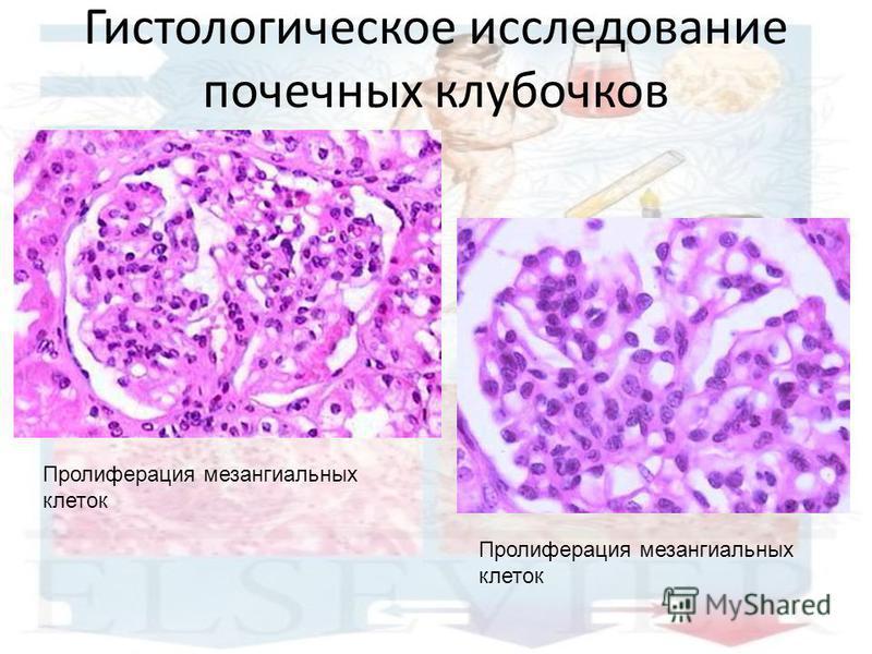 Гистологическое исследование почечных клубочков Пролиферация мезангиальных клеток