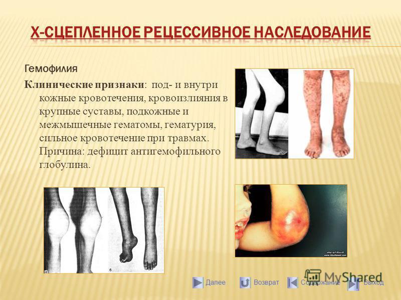 Гемофилия Клинические признаки: под- и внутри кожные кровотечения, кровоизлияния в крупные суставы, подкожные и межмышечные гематомы, гематурия, сильное кровотечение при травмах. Причина: дефицит антигемофильного глобулина. Выход Содержание Далее Воз
