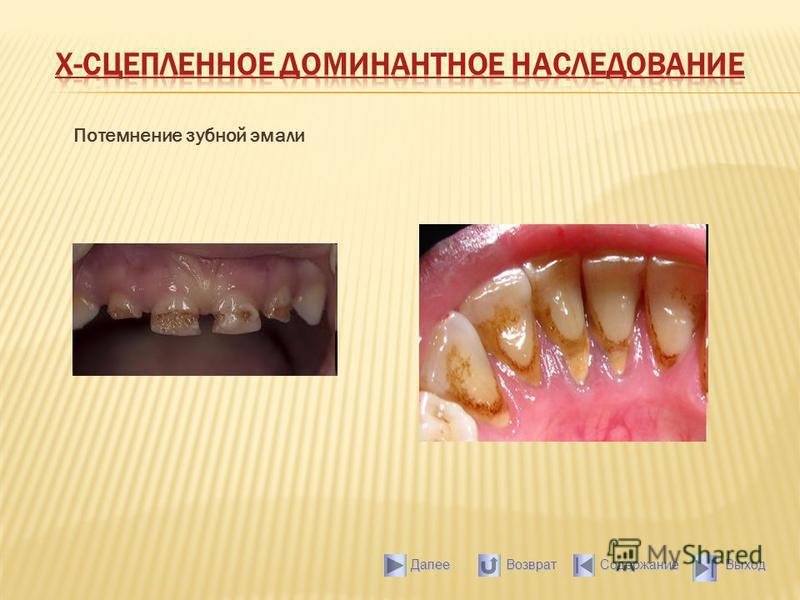 Потемнение зубной эмали Выход Содержание Далее Возврат