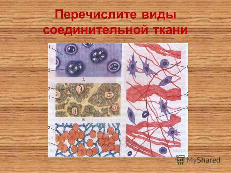 Перечислите виды соединительной ткани