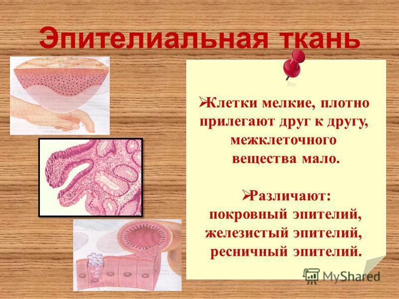 Эпителиальная ткань Клетки мелкие, плотно прилегают друг к другу, межклеточного вещества мало. Различают: покровный эпителий, железистый эпителий, ресничный эпителий.