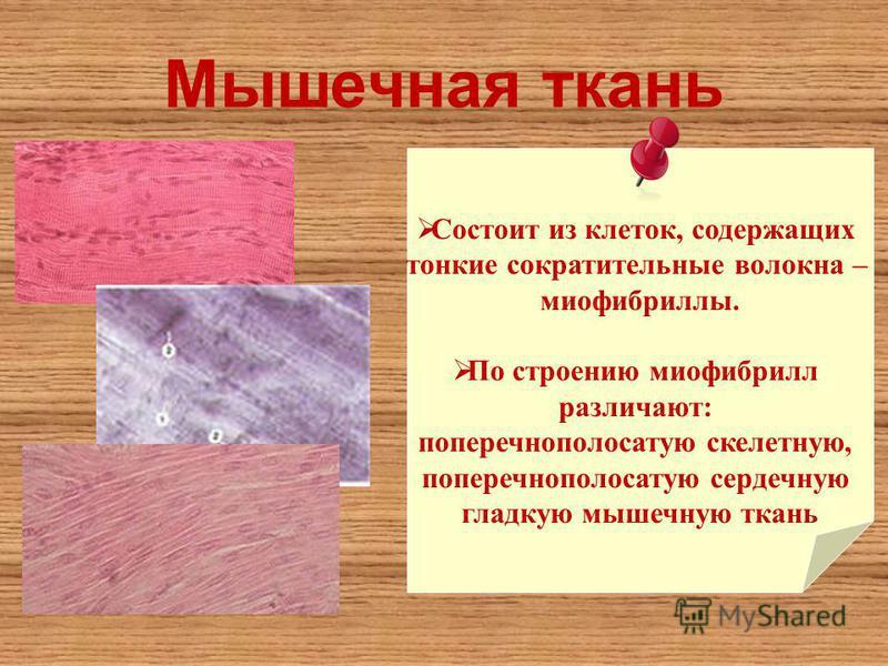Мышечная ткань Состоит из клеток, содержащих тонкие сократительные волокна – миофибриллы. По строению миофибрилл различают: поперечнополосатую скелетную, поперечнополосатую сердечную гладкую мышечную ткань