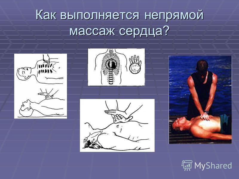 Как выполняется непрямой массаж сердца?
