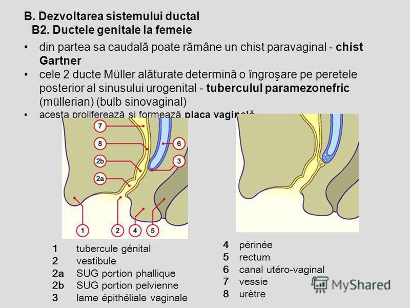 B2. Ductele genitale la femeie B. Dezvoltarea sistemului ductal din partea sa caudală poate rămâne un chist paravaginal - chist Gartner cele 2 ducte Müller alăturate determină o îngroşare pe peretele posterior al sinusului urogenital - tuberculul par