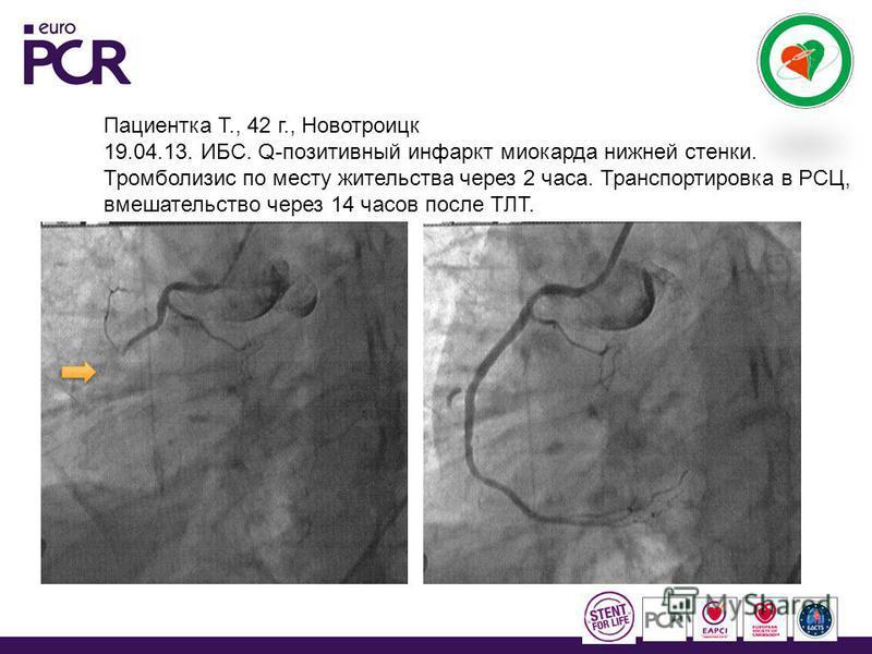 Пациентка Т., 42 г., Новотроицк 19.04.13. ИБС. Q-позитивный инфаркт миокарда нижней стенки. Тромболизис по месту жительства через 2 часа. Транспортировка в РСЦ, вмешательство через 14 часов после ТЛТ.