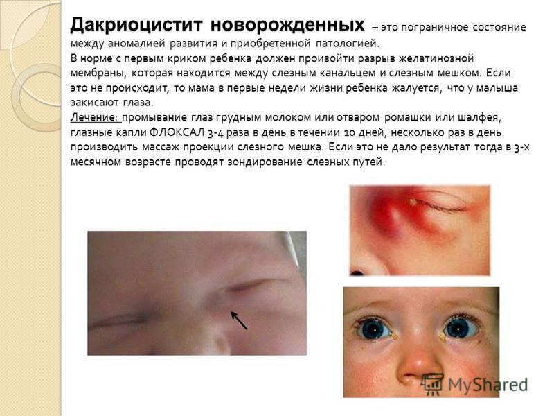 Дакриоцистит новорожденных – это пограничное состояние между аномалией развития и приобретенной патологией. В норме с первым криком ребенка должен произойти разрыв желатинозной мембраны, которая находится между слезным канальцем и слезным мешком. Есл