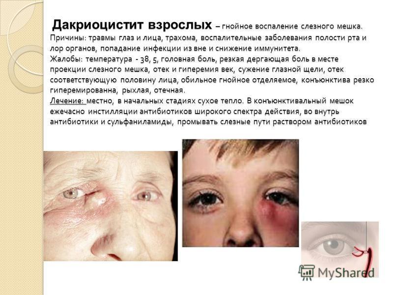 Дакриоцистит взрослых – гнойное воспаление слезного мешка. Причины : травмы глаз и лица, трахома, воспалительные заболевания полости рта и лор органов, попадание инфекции из вне и снижение иммунитета. Жалобы : температура - 38, 5, головная боль, резк