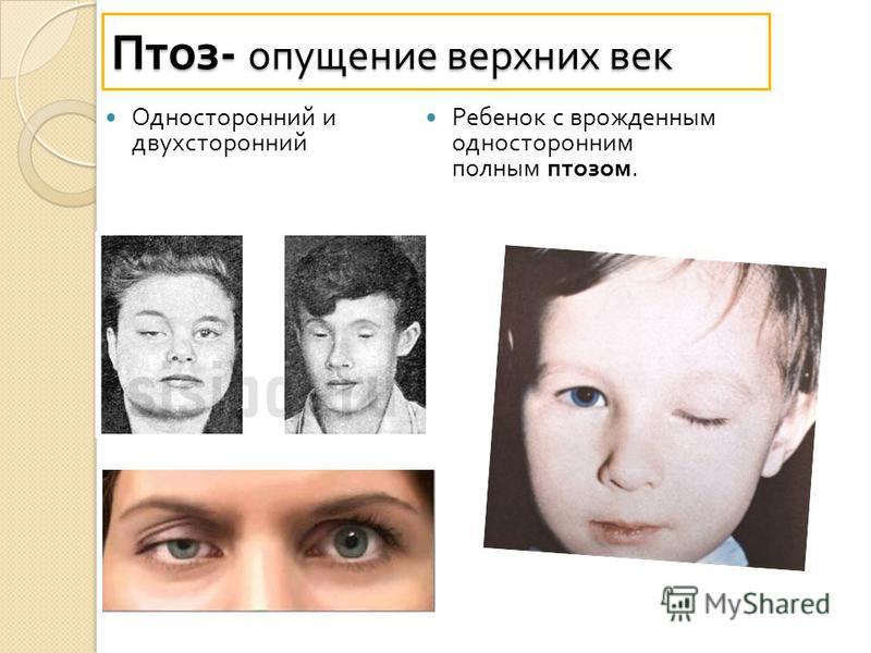Односторонний и двухсторонний Ребенок с врожденным односторонним полным птозом. Птоз - опущение верхних век