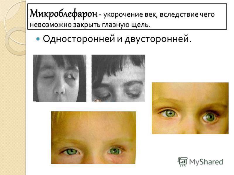 Микроблефарон - укорочение век, вследствие чего невозможно закрыть глазную щель. Односторонней и двусторонней.