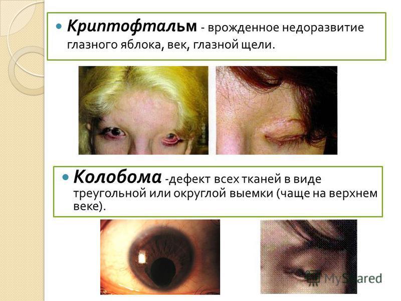 Криптофтальм - врожденное недоразвитие глазного яблока, век, глазной щели. Колобома - дефект всех тканей в виде треугольной или округлой выемки ( чаще на верхнем веке ).