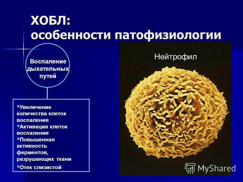 Воспаление дыхательных путей Увеличение количества клеток воспаления Активация клеток воспаления Повышенная активность ферментов, разрушающих ткани Отек слизистой Нейтрофил ХОБЛ: особенности патофизиологии