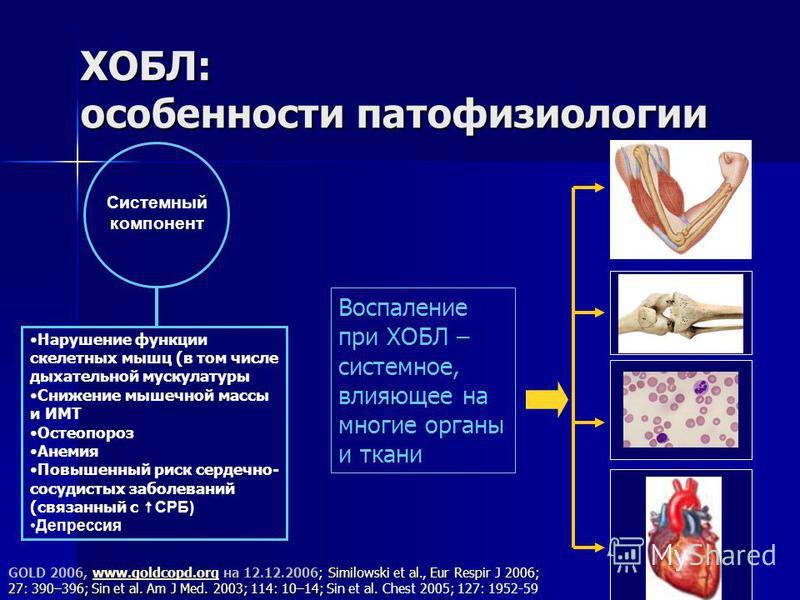 ХОБЛ: особенности патофизиологии Системный компонент Нарушение функции скелетных мышц (в том числе дыхательной мускулатуры Снижение мышечной массы и ИМТ Остеопороз Анемия Повышенный риск сердечно- сосудистых заболеваний (связанный с СРБ) Депрессия ;