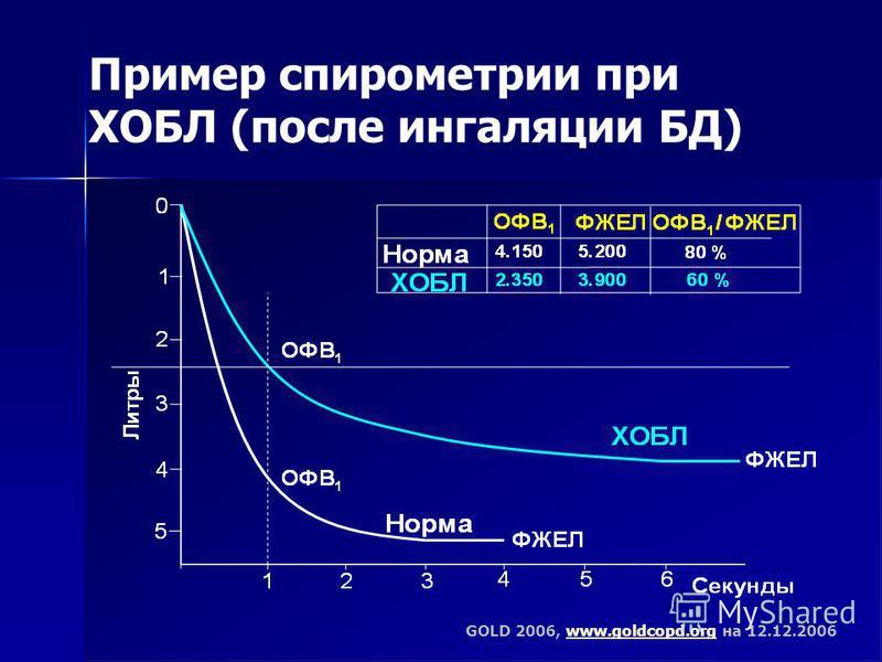Пример спирометрии при ХОБЛ (после ингаляции БД) GOLD 2006, www.goldcopd.org на 12.12.2006www.goldcopd.org