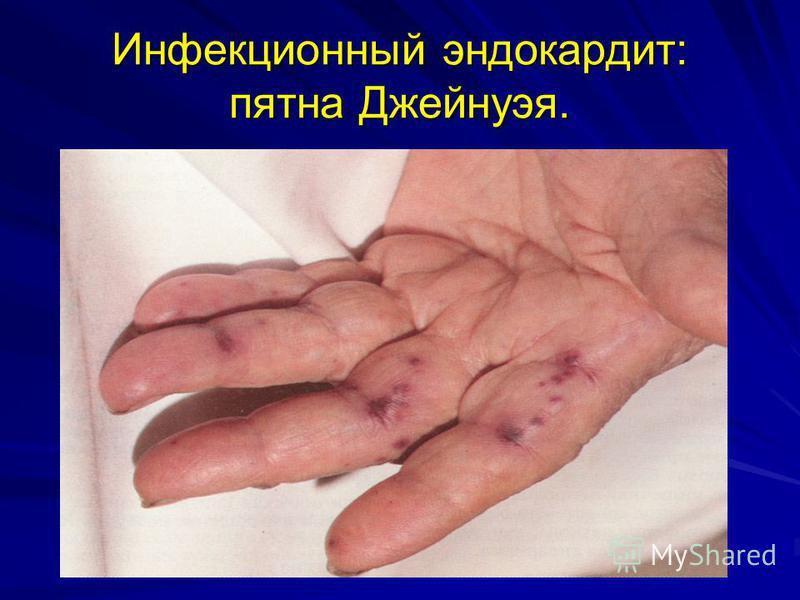 Инфекционный эндокардит: пятна Джейнуэя.