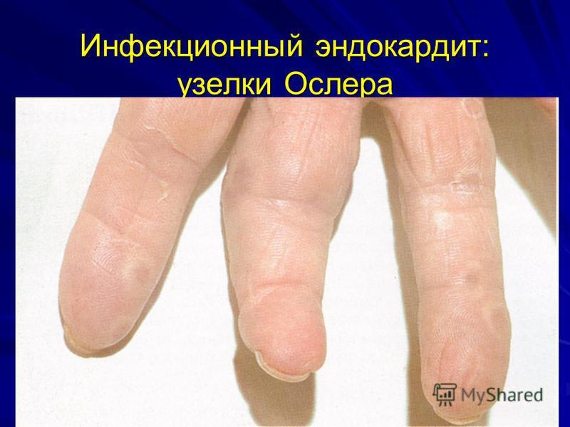 Инфекционный эндокардит: узелки Ослера