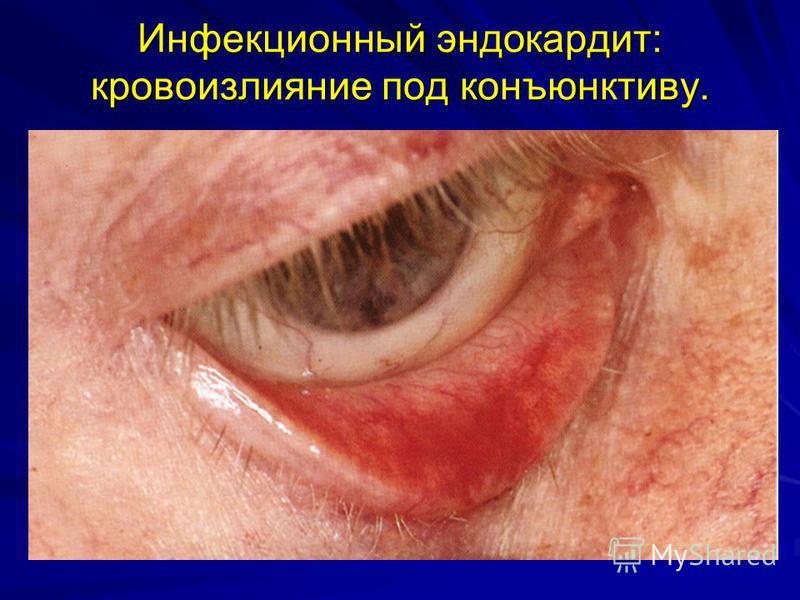 Инфекционный эндокардит: кровоизлияние под конъюнктиву.