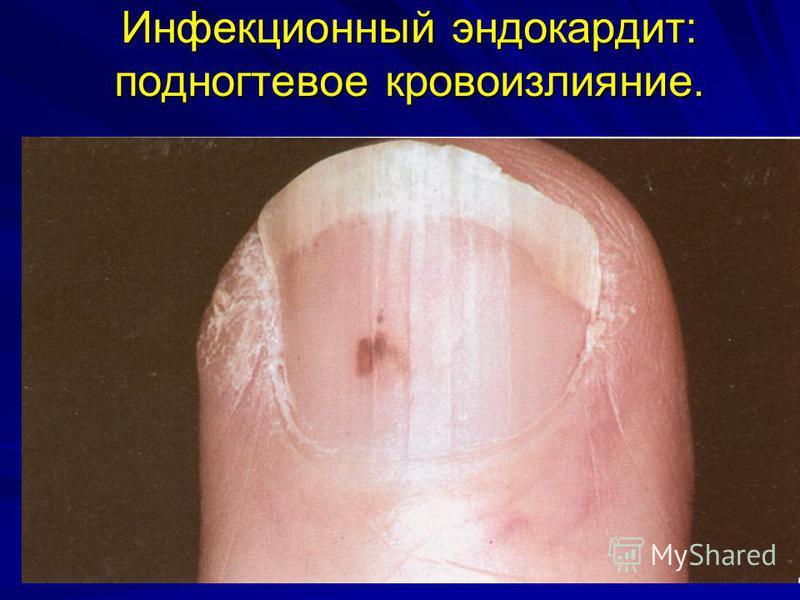 Инфекционный эндокардит: подногтевое кровоизлияние.