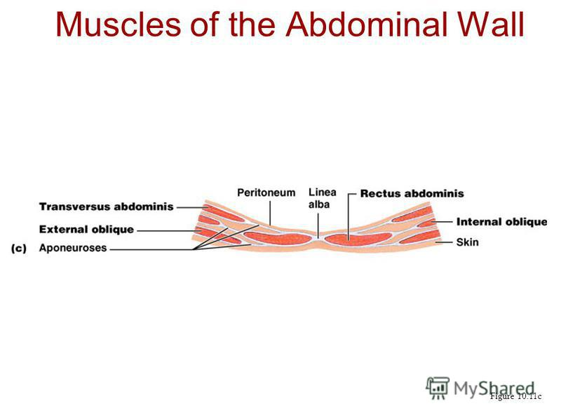Muscles of the Abdominal Wall Figure 10.11c
