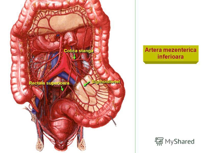 Artera mezenterica inferioara Colica stanga Rectala superioara Sigmoidienel