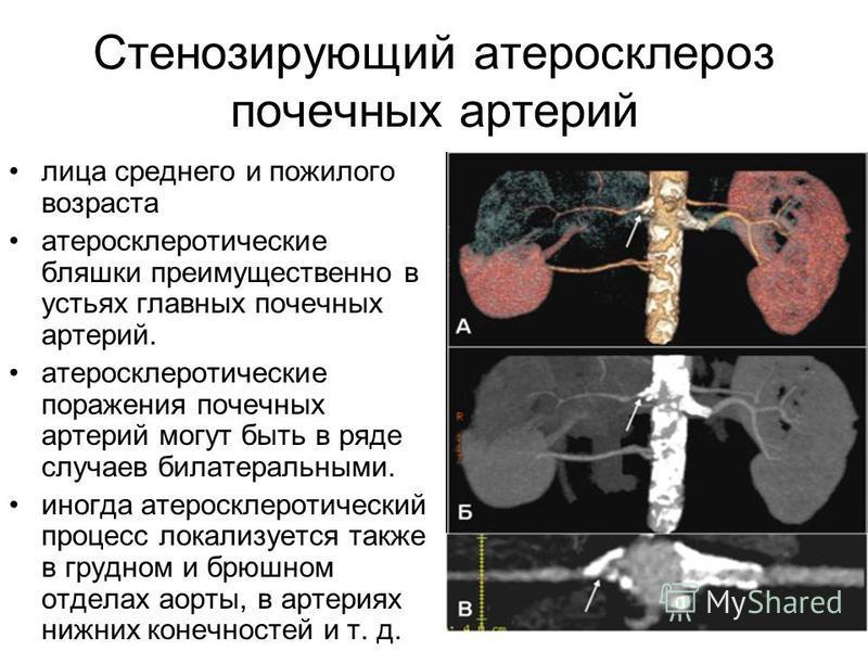 Стенозирующий атеросклероз почечных артерий лица среднего и пожилого возраста атеросклеротические бляшки преимущественно в устьях главных почечных артерий. атеросклеротические поражения почечных артерий могут быть в ряде случаев билатеральными. иногд