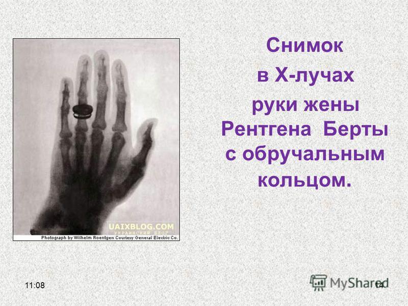 Снимок в Х-лучах руки жены Рентгена Берты с обручальным кольцом. 11:1114