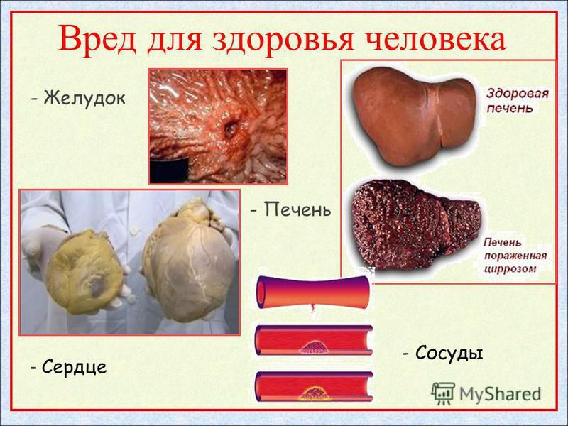 Вред для здоровья человека - Желудок - Печень - Сердце - Сосуды